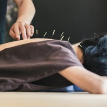 L'acupuncture, une médecine reconnue